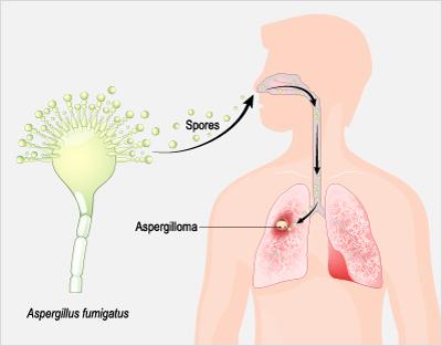 Aspergillosis, Aspergillus and COVID-19