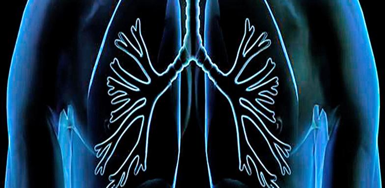 Pulmonary Aspergillosis and COVID-19
